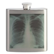 Lungs, X-ray Flask