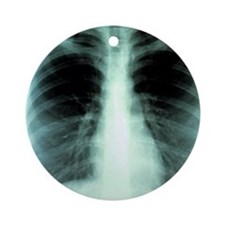 Lungs, X-ray Round Ornament