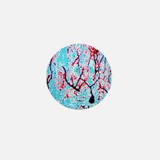 LM of cerebellar tissue with Purkinje  Mini Button