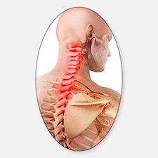 Back pain, conceptual artwork Sticker (Oval)