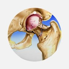Osteoporosis Round Ornament