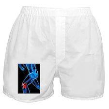 Knee pain, conceptual artwork Boxer Shorts