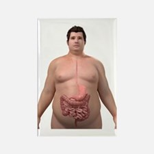 Obese man's digestive system, art Rectangle Magnet