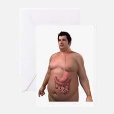 Obese man's digestive system, artwor Greeting Card