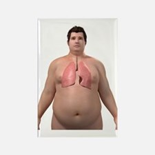 Obese man's lungs, artwork Rectangle Magnet