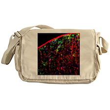 Nerve cell injury response Messenger Bag