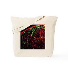 Nerve cell injury response Tote Bag