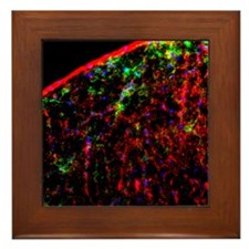 Nerve cell injury response Framed Tile