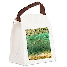 Ovarian blood vessel, SEM Canvas Lunch Bag