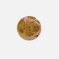 Pancreas cell, SEM Mini Button