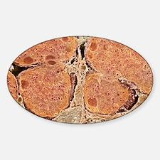 Pancreas cells, SEM Sticker (Oval)