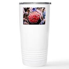 Renal corpuscle of kidn Travel Mug
