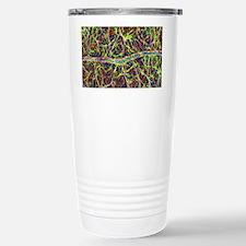 Retina blood vessel and Travel Mug