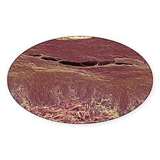 Skin layers, SEM Decal