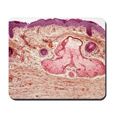 Skin layers, light micrograph Mousepad