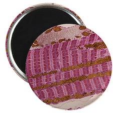 Skeletal muscle fibre, TEM Magnet