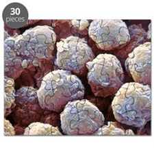 Neutrophil white blood cells, SEM Puzzle