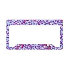 Salivary gland, light microgr License Plate Holder