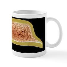 Diatom, SEM Mug