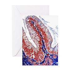 Intestinal villus, light micrograph Greeting Card