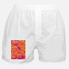 Kidney glomerulus, SEM Boxer Shorts