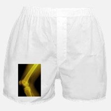 Knee joint, X-ray Boxer Shorts