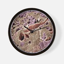 Lactating breast tissue, SEM Wall Clock