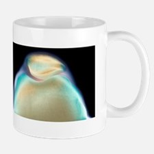 Kneecaps, X-ray Mug