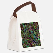 Kidney tubules in section Canvas Lunch Bag