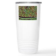 Kidney tubules in secti Travel Coffee Mug