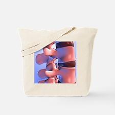 Lumbar vertebrae of the human spine Tote Bag