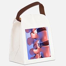 Lumbar vertebrae of the human spi Canvas Lunch Bag