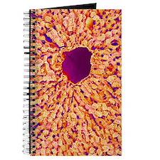 Liver vein, SEM Journal