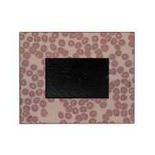 LM of human blood smear showing red Picture Frame