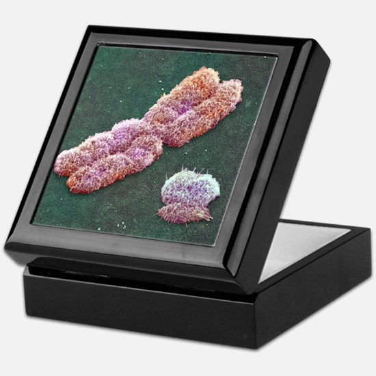 Male sex chromosomes, SEM Keepsake Box