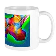 Normal foot, X-ray Mug