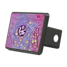 Pancreas cell, TEM Hitch Cover
