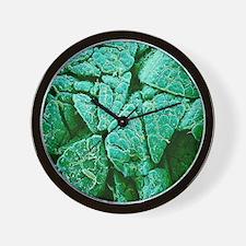 Pancreas cells, SEM Wall Clock