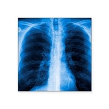 "Normal chest X-ray Square Sticker 3"" x 3"""