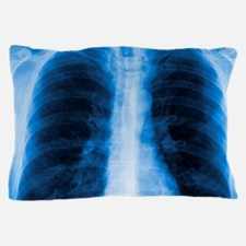 Normal chest X-ray Pillow Case