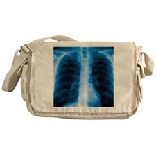 Normal chest X-ray Messenger Bag