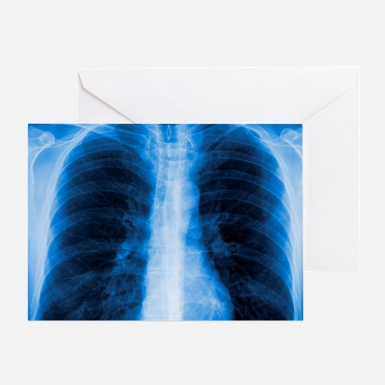Normal chest X-ray Greeting Card