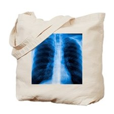 Normal chest X-ray Tote Bag