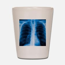 Normal chest X-ray Shot Glass