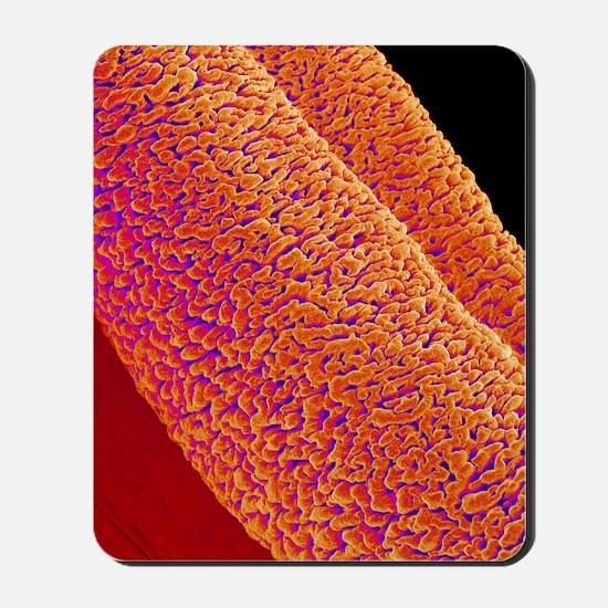Penis erectile tissue, SEM Mousepad