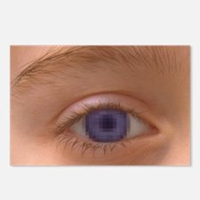Pixellated eye Postcards (Package of 8)