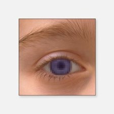 "Pixellated eye Square Sticker 3"" x 3"""