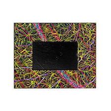 Retina blood vessel and nerve cells Picture Frame