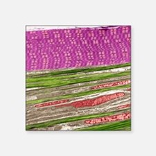 """Skeletal muscle and tendon, Square Sticker 3"""" x 3"""""""