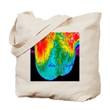 Scrotum thermogram Tote Bag